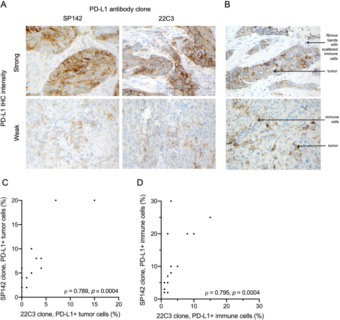 Association Of Pd L1 Expression By Immunohistochemistry And Gene Microarray With Molecular Subtypes Of Ovarian Tumors Modern Pathology
