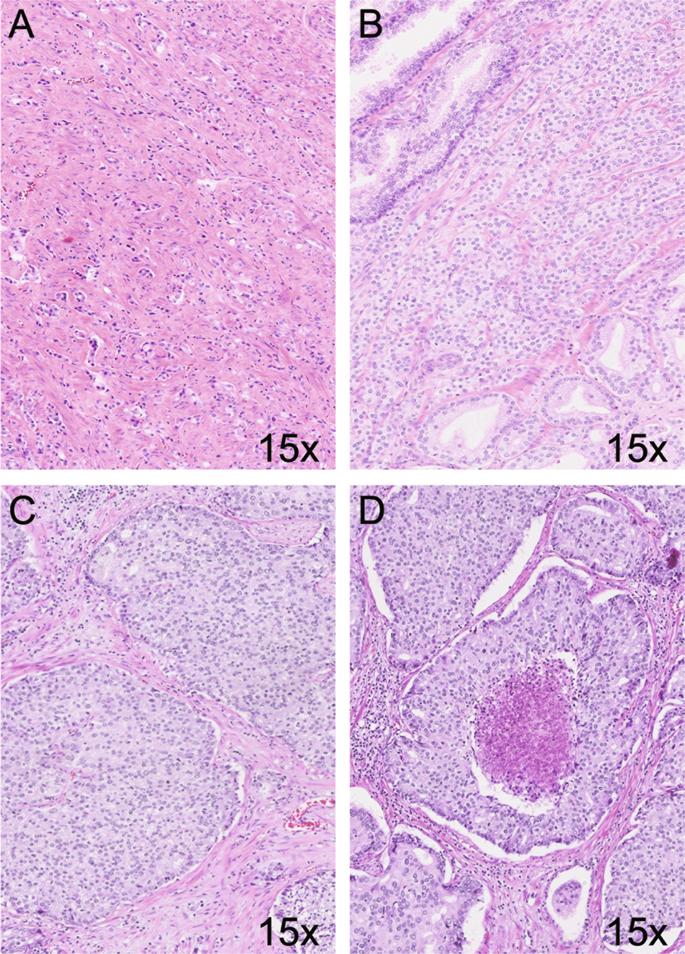 adenocarcinoma prostate gleason 6( 33) Folk tippek a prosztatitis kezelése