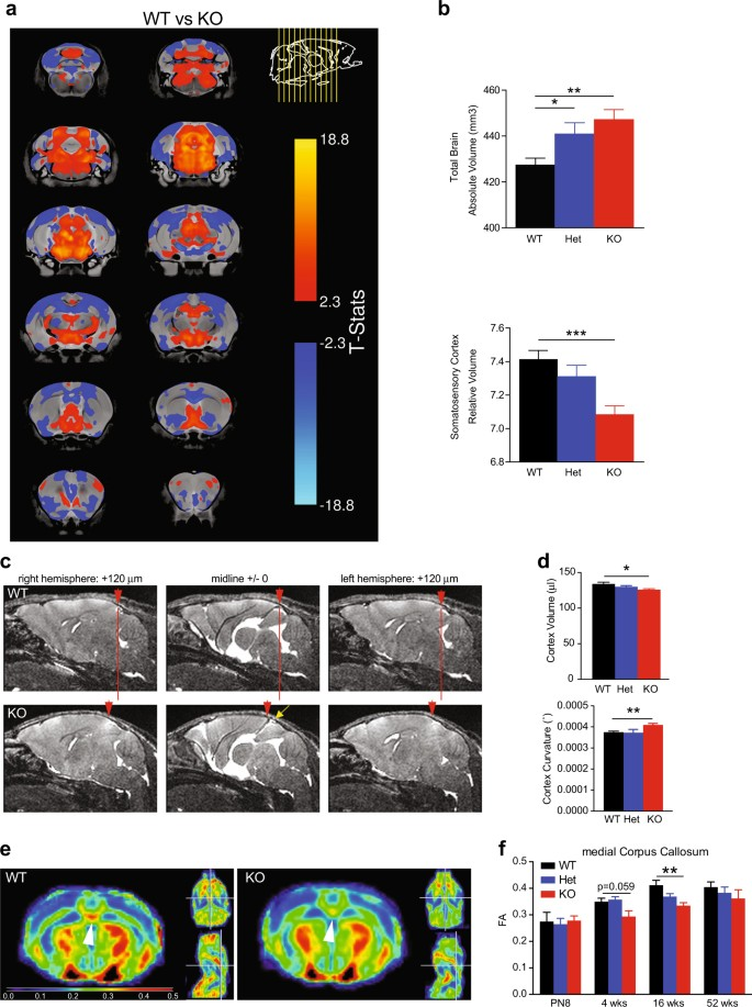 Altered TAOK2 activity causes autism-related