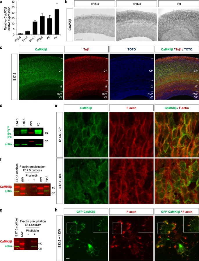 A novel role for CAMKIIβ in the regulation of cortical neuron