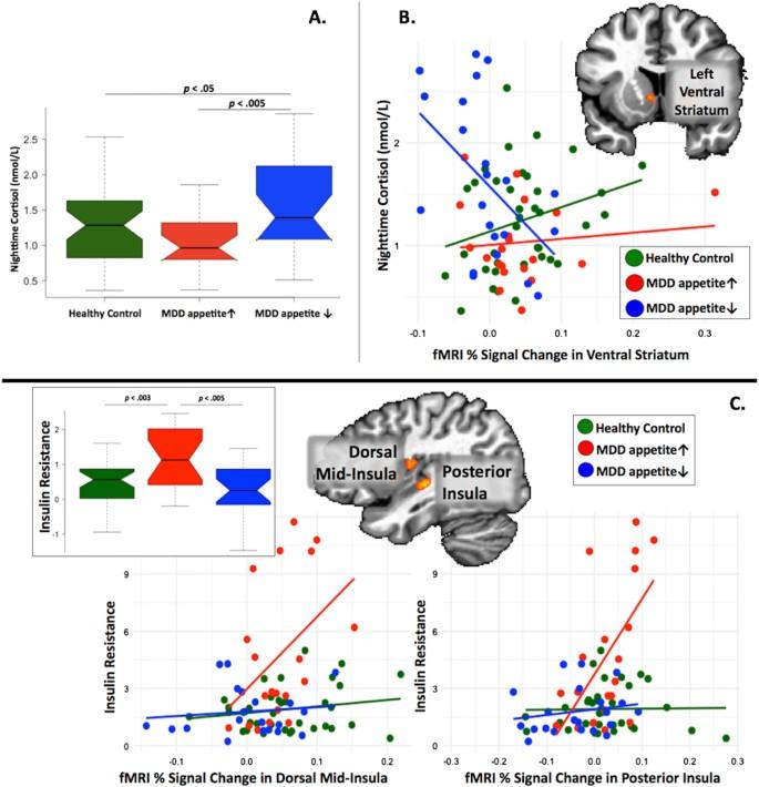 Appetite changes reveal depression subgroups with distinct endocrine