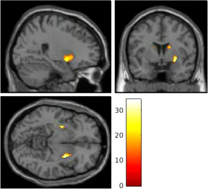 The neural and molecular basis of working memory function in psychosis