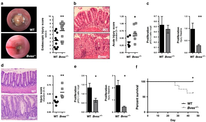 BVES is required for maintenance of colonic epithelial