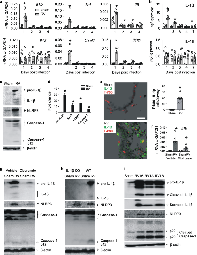Inflammasome Activation Is Required For Human Rhinovirus Induced Airway Inflammation In Naive And Allergen Sensitized Mice Mucosal Immunology