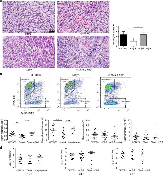 Alpha Hemolysin Of Uropathogenic Escherichia Coli Induces Gm Csf Mediated Acute Kidney Injury Mucosal Immunology