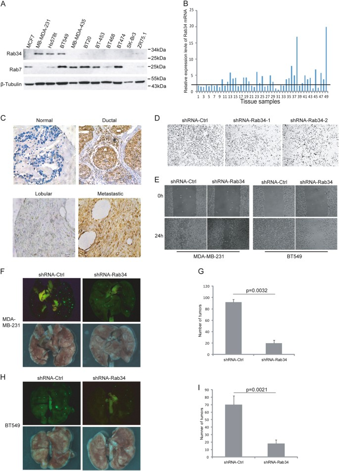 Rab34 regulates adhesion, migration, and invasion of breast
