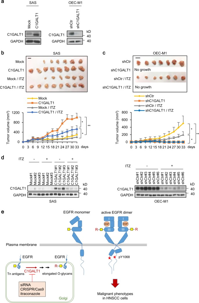 C1GALT1 predicts poor prognosis and is a potential therapeutic
