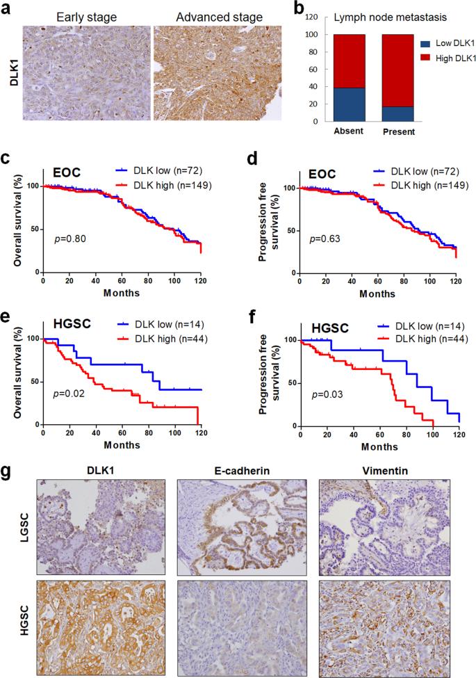 Delta-like 1 homologue promotes tumorigenesis and epithelial