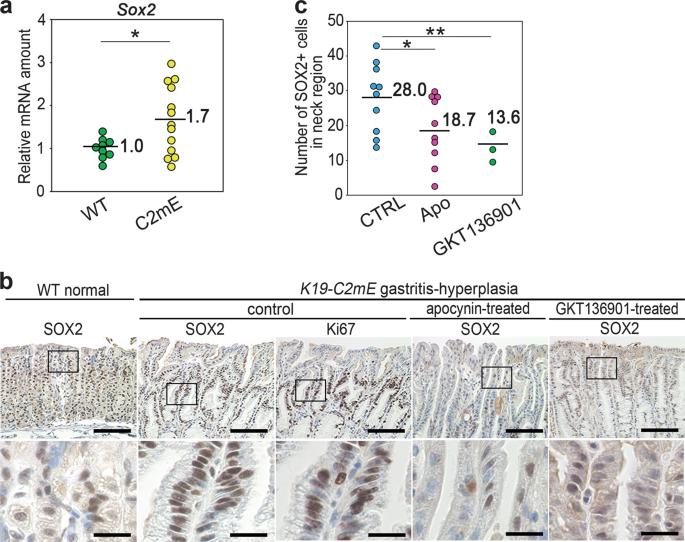 NF-κB-induced NOX1 activation promotes gastric tumorigenesis through