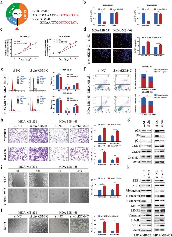 circKDM4C suppresses tumor progression and attenuates