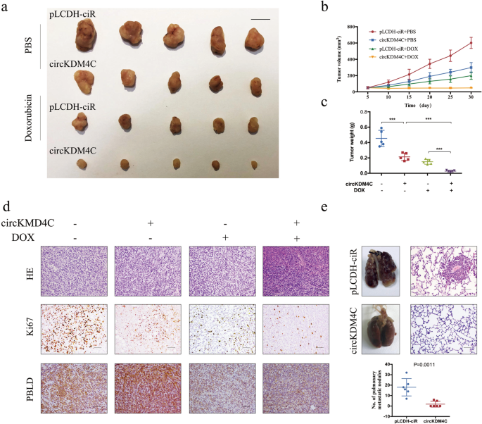circKDM4C suppresses tumor progression and attenuates