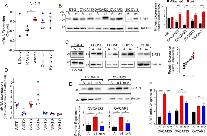 Context Dependent Activation Of Sirt3 Is Necessary For Anchorage Independent Survival And Metastasis Of Ovarian Cancer Cells Oncogene