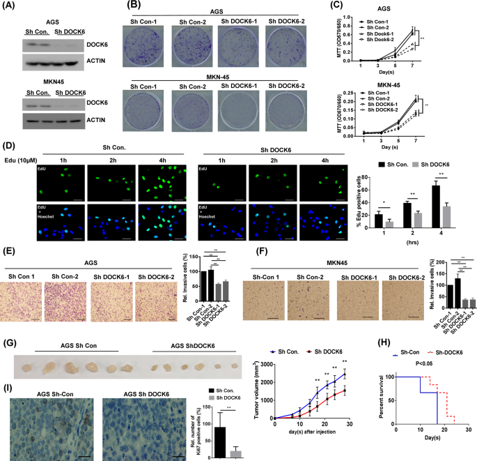 DOCK6 promotes chemo- and radioresistance of gastric cancer by ...
