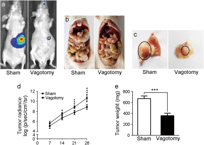 Gastric cancer vagus nerve. Gastric cancer vagus nerve Traducere stomacali în engleză