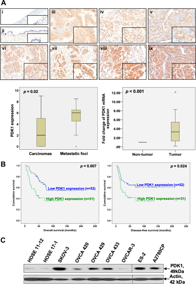 Pdk1 Promotes Ovarian Cancer Metastasis By Modulating Tumor Mesothelial Adhesion Invasion And Angiogenesis Via A5b1 Integrin And Jnk Il 8 Signaling Oncogenesis