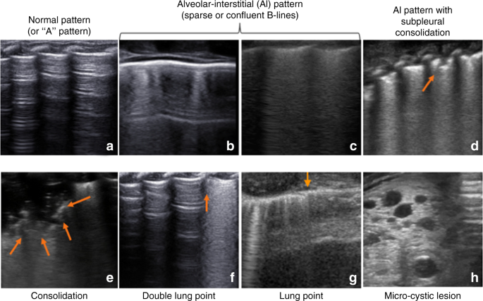 Point-of-care lung ultrasound in neonatology: classification