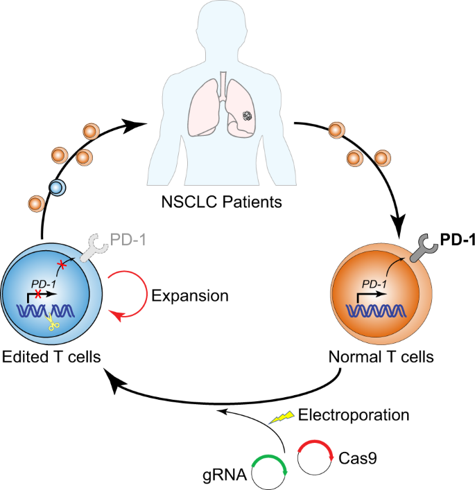 The first human trial of CRISPR-based cell therapy clears safety concerns as new treatment for late-stage lung cancer | Signal Transduction and Targeted Therapy