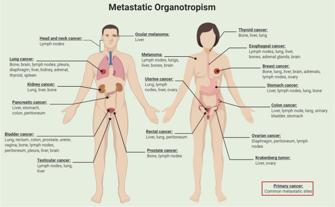 Molecular Principles Of Metastasis A Hallmark Of Cancer Revisited Signal Transduction And Targeted Therapy