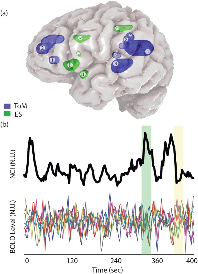 Social affective context reveals altered network dynamics in