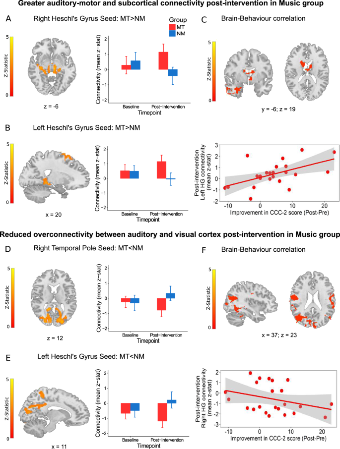 Music improves social communication and auditory–motor connectivity