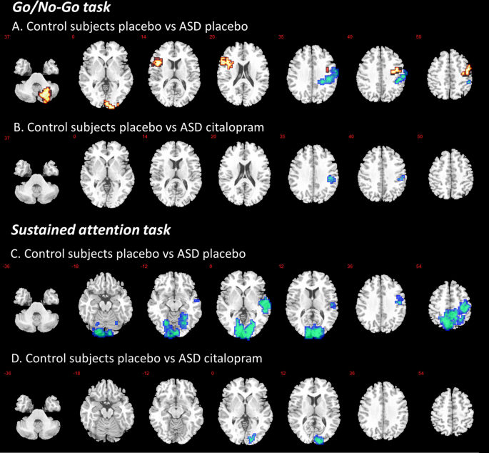 Modulation of brain activation during executive functioning in autism