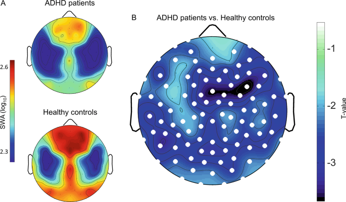 Sleep EEG slow-wave activity in medicated and unmedicated children and
