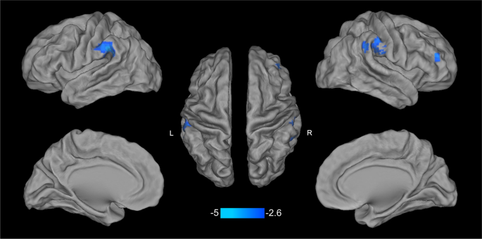 Effects of COMT rs4680 and BDNF rs6265 polymorphisms on brain degree c
