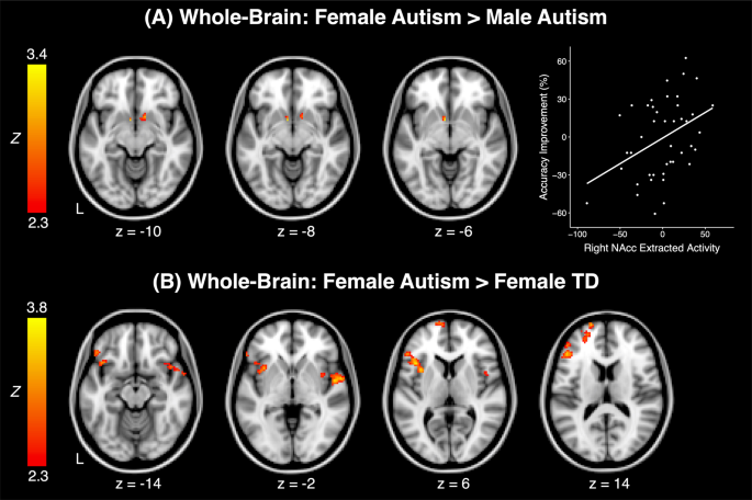 brain sex differences orbitofrontal cortex and did in Bury