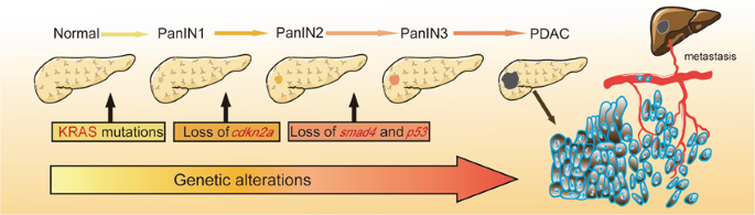 pancreatic cancer gene mutation)