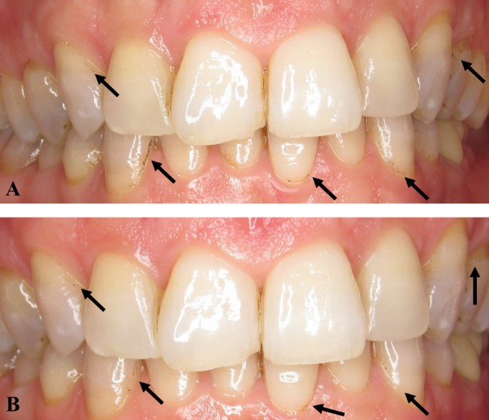 Remediation of adult black dental stains by phototherapy ...
