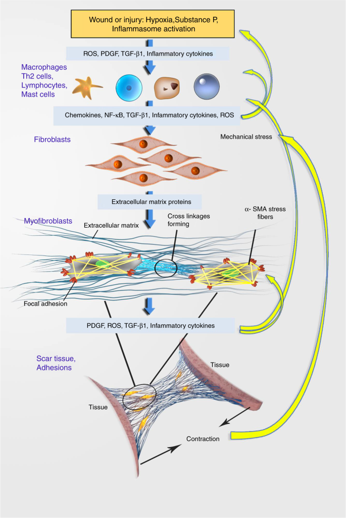 Pathological mechanisms and therapeutic outlooks for arthrofibrosis