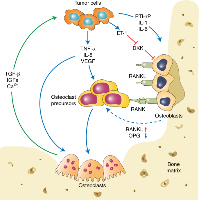 Molecular Mechanisms And Clinical Management Of Cancer Bone Metastasis Bone Research