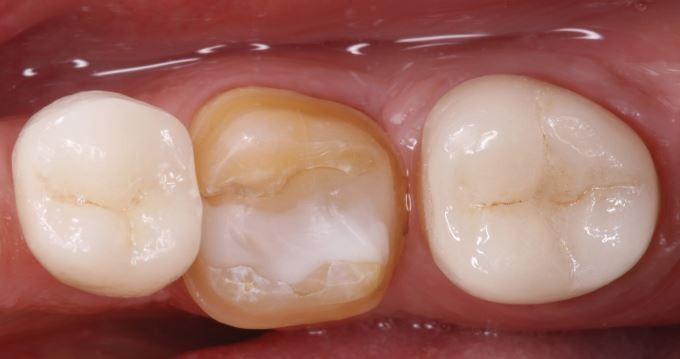 Advances in materials and concepts in fixed prosthodontics