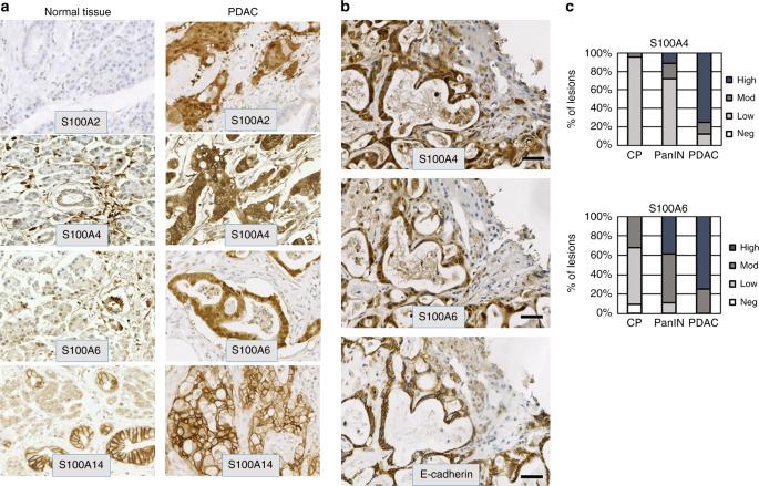 ZEB1 and IL-6/11-STAT3 signalling cooperate to define invasive