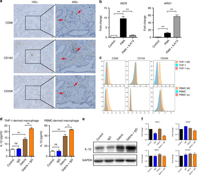 Tumour cell-derived debris and IgG synergistically promote metastasis