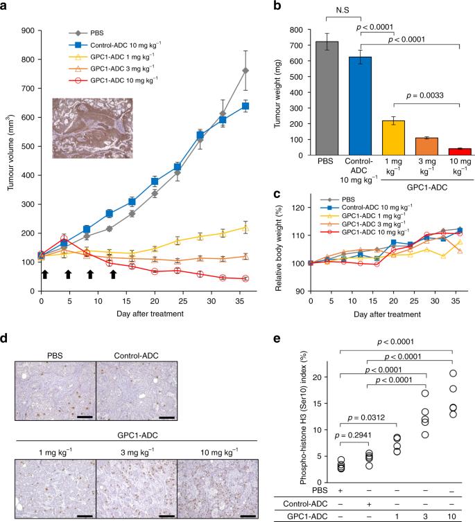 endometrium rák gpc 2021)