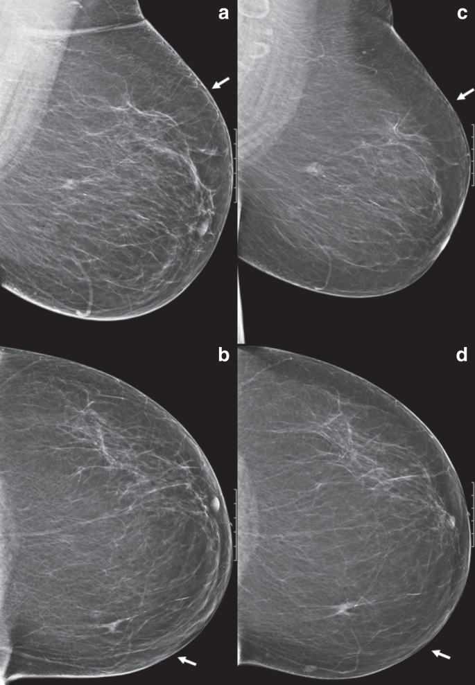 Delayed Breast Cancer Diagnosis After Repeated Recall At Biennial