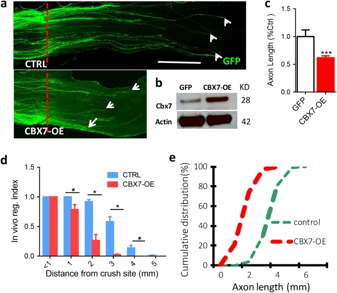 Polycomb protein family member CBX7 regulates intrinsic axon growth