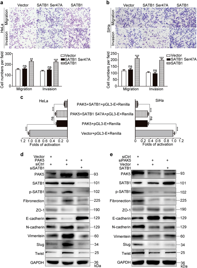 PAK5 promotes the migration and invasion of cervical cancer cells by