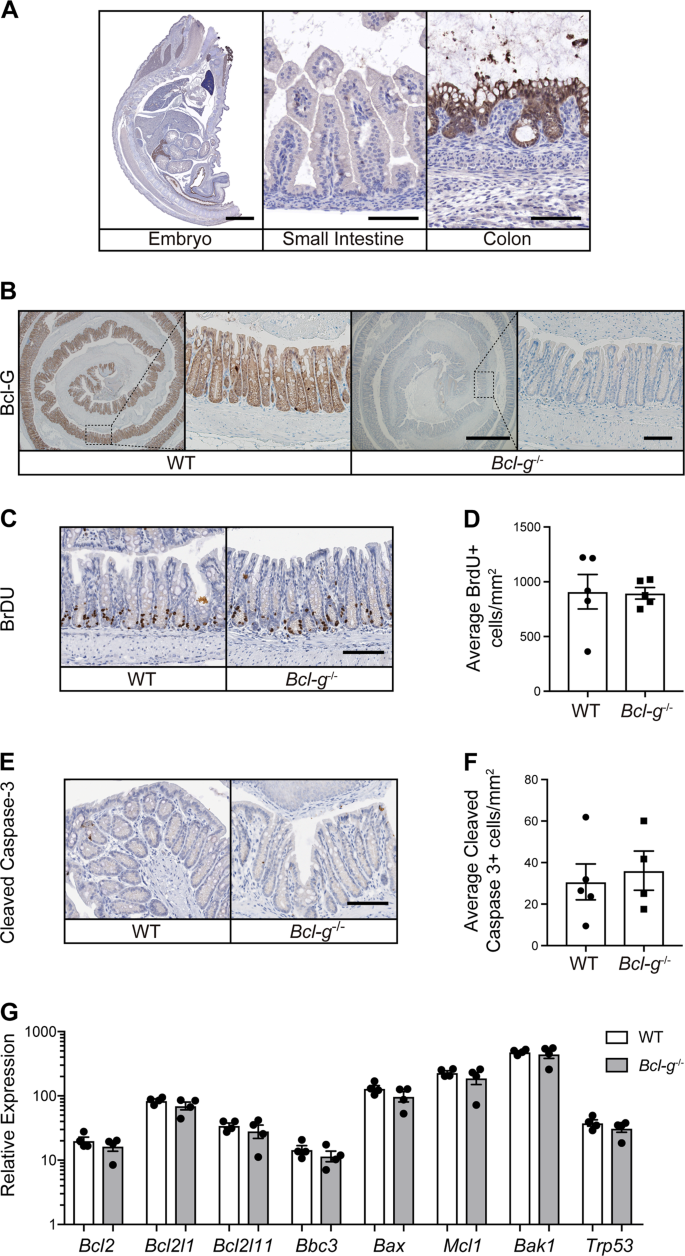 Loss of Bcl-G, a Bcl-2 family member, augments the development of infl