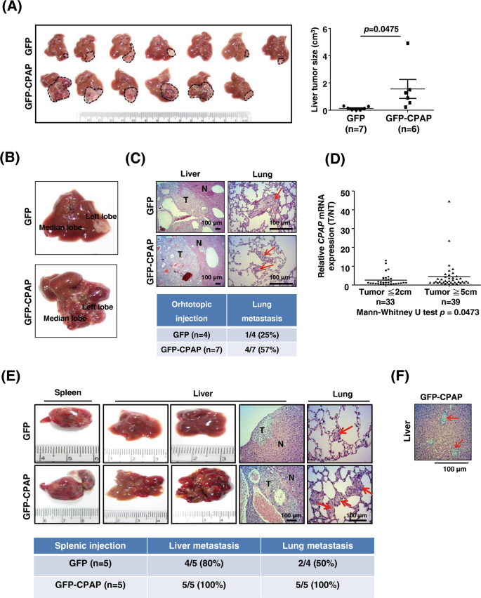 CPAP promotes angiogenesis and metastasis by enhancing STAT3 activity