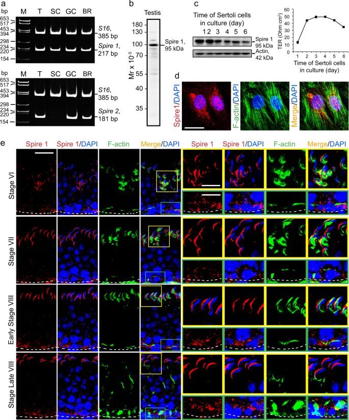 Actin nucleator Spire 1 is a regulator of ectoplasmic
