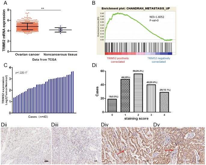Trim52 Plays An Oncogenic Role In Ovarian Cancer Associated With Nf Kb Pathway Cell Death Disease
