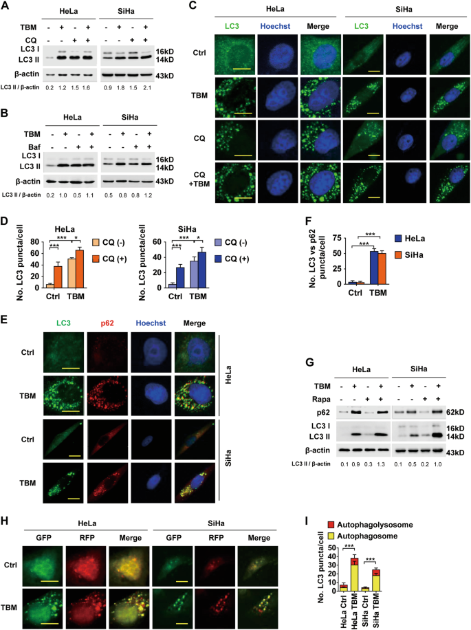 Tubeimoside I induces accumulation of impaired autophagolysosome