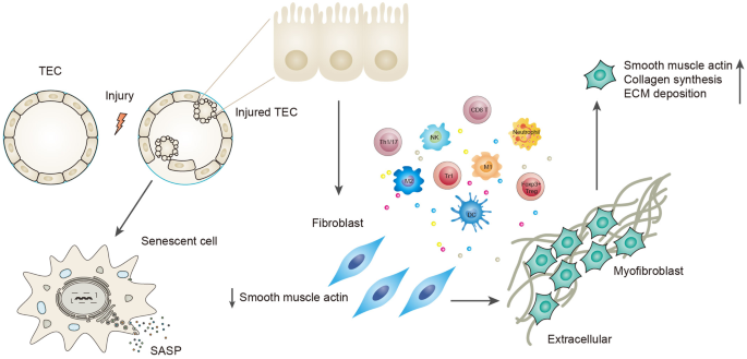 it is the severity and frequency of the injury that determine whether the  repair mechanism adopted by tubular cells is beneficial or maladaptive