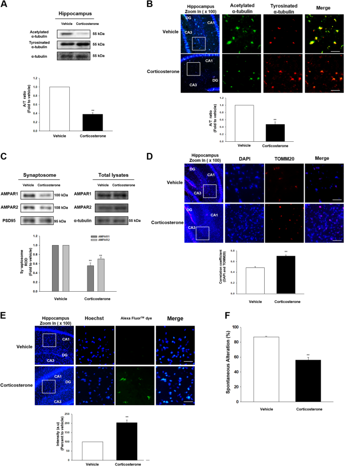 Glucocorticoid-mediated ER-mitochondria contacts reduce AMPA