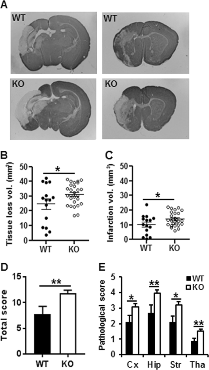Lack of the brain-specific isoform of apoptosis-inducing
