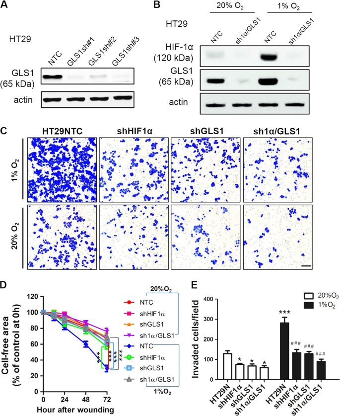 Glutaminase 1 expression in colorectal cancer cells is induced by