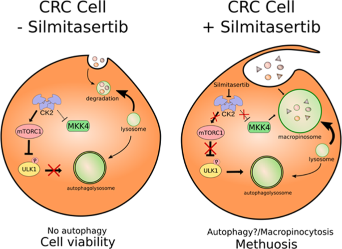 CK2 inhibition with silmitasertib promotes methuosis-like cell death