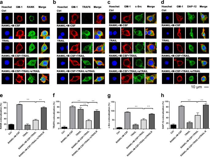 TRAIL inhibits RANK signaling and suppresses osteoclast